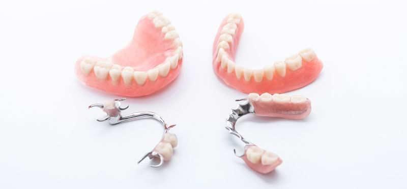 proth ses dentaires dentiers et partiels montr al. Black Bedroom Furniture Sets. Home Design Ideas