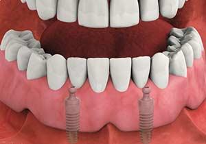 Prothèse amovible sur 2 implants
