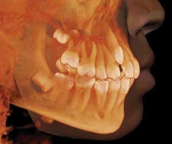 dents de sagesse centre dentaire de haute technologie du qu bec. Black Bedroom Furniture Sets. Home Design Ideas