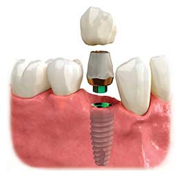 Implant supported crown