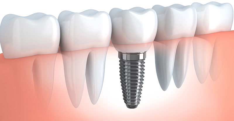 Souvent Implant dentaire | Coûts implants dentaires Montreal VU33