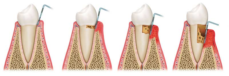 Evolution of gum disease