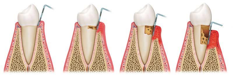 Evolution of gum disease