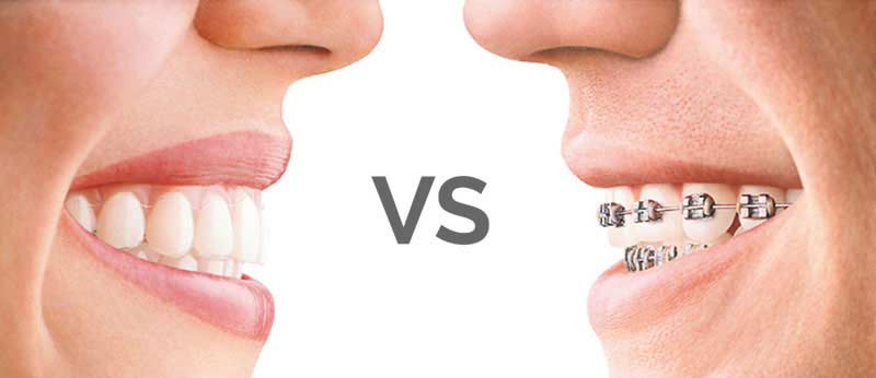 Orthodontics with Invisalign vs orthodontics with braces