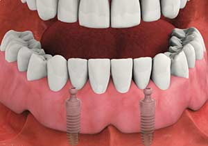 Implant stabilized denture