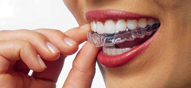 Orthodontics with Invisalign